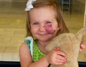 Girl, 3, had the BEST response when kids started staring at her birthmark