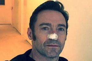 'Wear sunscreen!' Hugh Jackman reveals he is being treated AGAIN for skin cancer